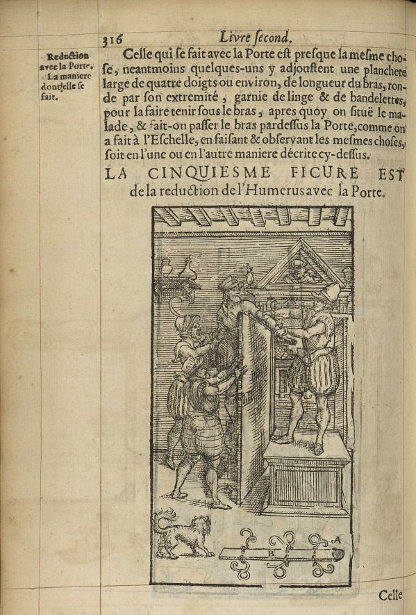 La cinquiesme Figure est de la reduction de l'humerus avec la porte - L'Oeconomie chirurgicale, pour [...] -  - med05207x0345