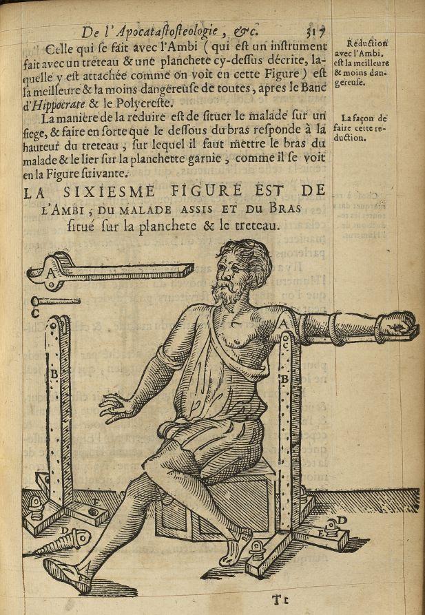 La sixiesme Figure est de l'ambi, du malade assis et du bras situé sur la planchette & le treteau -  [...] -  - med05207x0346