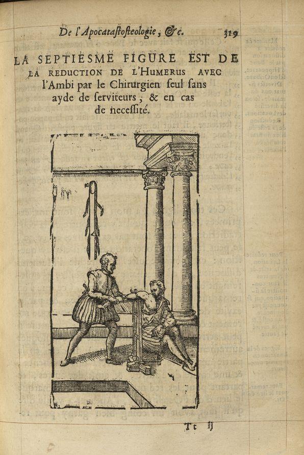 La septiesme Figure est de la reduction de l'humerus avec l'ambi par le Chirurgien seul sans ayde de [...] -  - med05207x0348