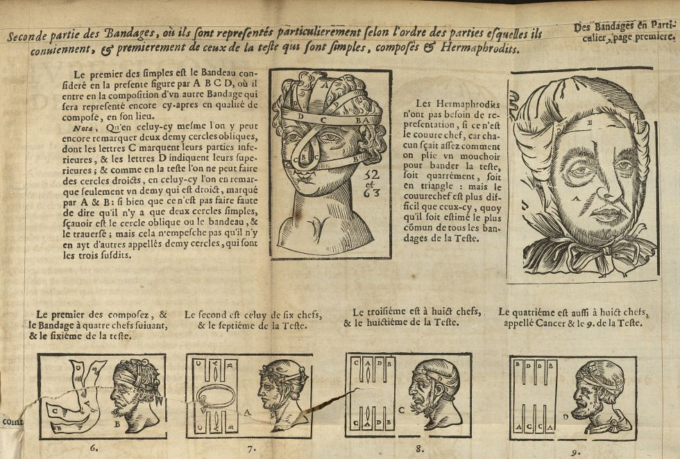 [Bandages de la têtes, « simples, composés & hermaphrodits »] - L'Oeconomie chirurgicale, pour le r' [...] -  - med05207x0416