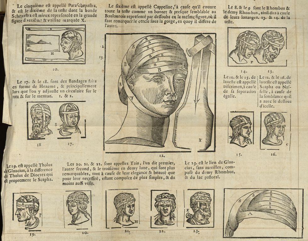 [Suite des bandages de la têtes, « simples, composés & hermaphrodits »] - L'Oeconomie chirurgicale,  [...] -  - med05207x0417