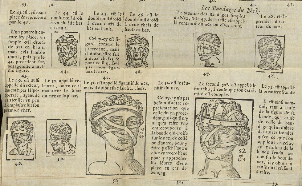 Les bandages des yeux / Les bandages du nez - L'Oeconomie chirurgicale, pour le r'habillement des os [...] -  - med05207x0432