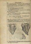 La seconde Figure du tronc. Qui est l'os sacrum, est double, ou exterieurement ou interieurement, av [...]