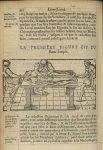 La premiere Figure est du banc simple - L'Oeconomie chirurgicale, pour le r'habillement des os du co [...]