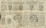 Les bandages des yeux / Les bandages du nez - L'Oeconomie chirurgicale, pour le r'habillement des os [...]