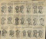 Les bandages du tronc - L'Oeconomie chirurgicale, pour le r'habillement des os du corps humain conte [...]
