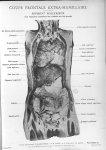 Planche 20. Coupe frontale extra-mamillaire. Segment postérieur (les segments antérieurs des viscère [...]