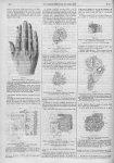 Figure 1. Dessin de la main de l'observation 1 / Figure 2. Vue d'ensemble d'une coupe à faible gross [...]