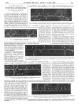 Fig. 1. Electrocardiogramme normal. Dérivation II / Fig. 2. Extrasystole du ventricule gauche. Dériv [...]