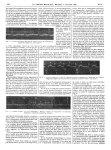 Fig. 6. Fibrillation auriculaire. Dérivation II / Fig. 7. Arythmie complète : type mixte. Dérivation [...]
