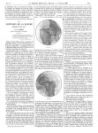 Figure 1 / Figure 2 - La Presse médicale - [Articles originaux]