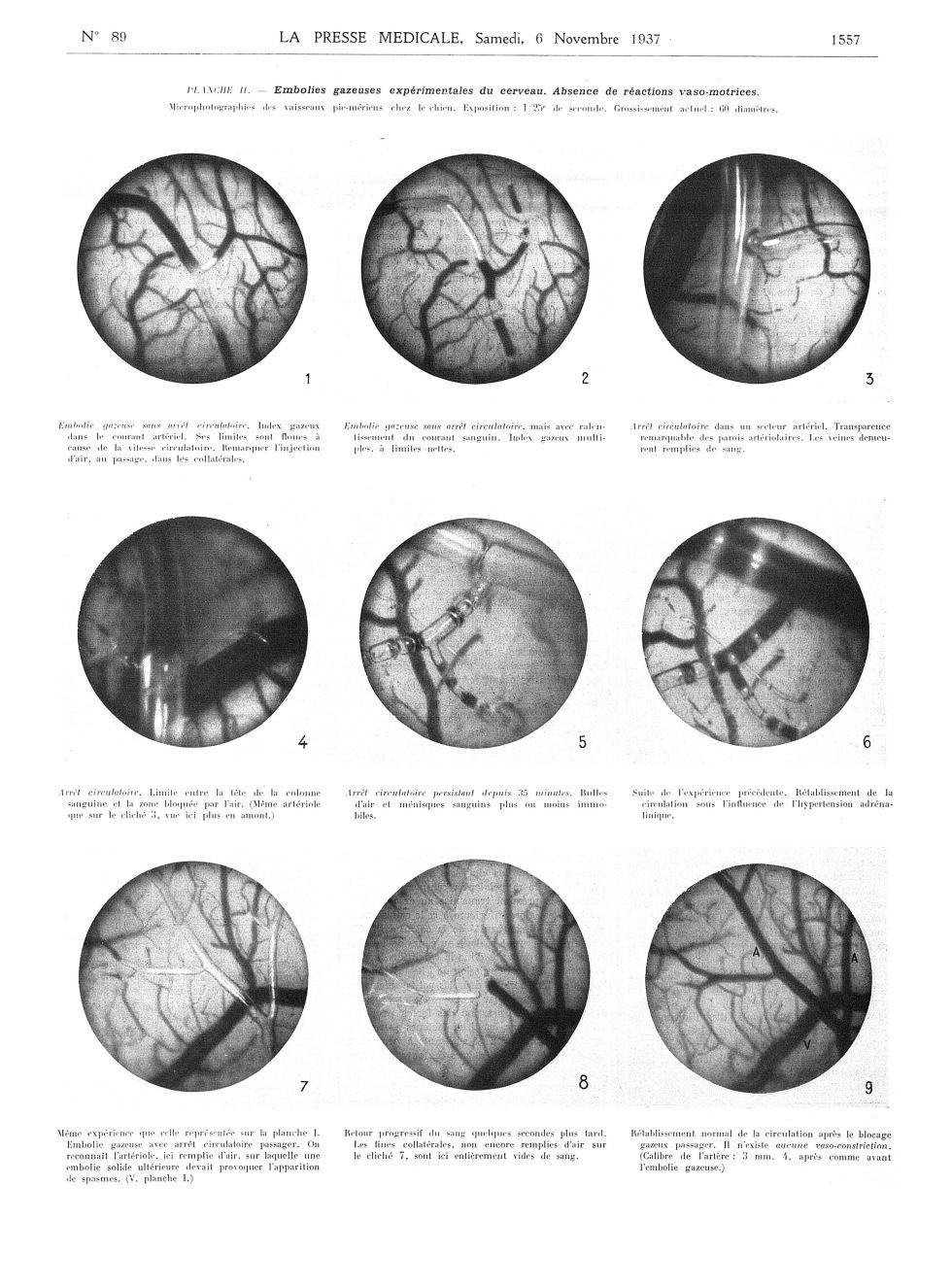 Planche II. Embolies gazeuses expérimentales du cerveau ...