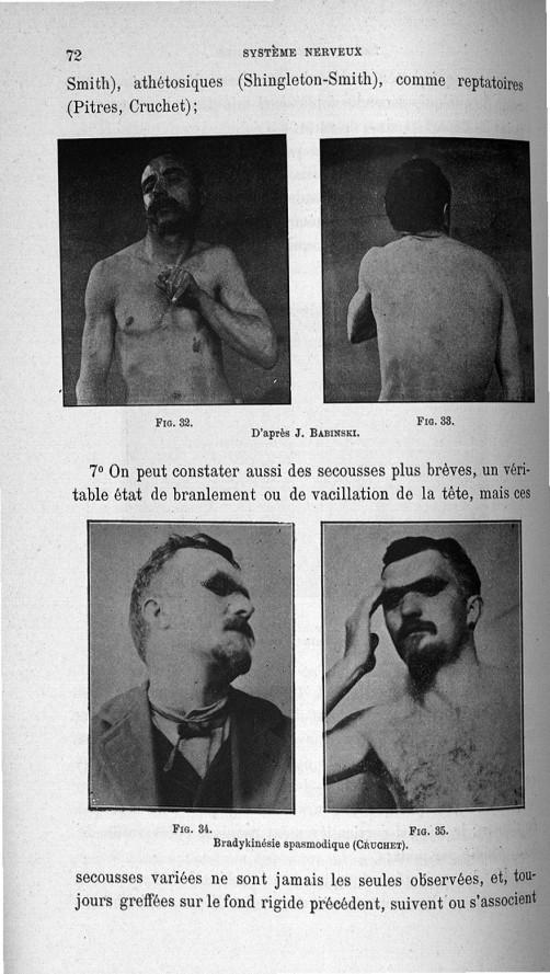 Fig. 32 / Fig. 33. D'après J. Babinski / Fig. 34 / Fig. 35. Bradykinésie spasmodique (Cruchet) - Tit [...] -  - med110133x065x10x0080