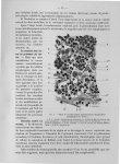 Fig. 7. Début de l'envahissement épithéliomateux des ganglions lymphatiques (in Cancer) - Titres et  [...]