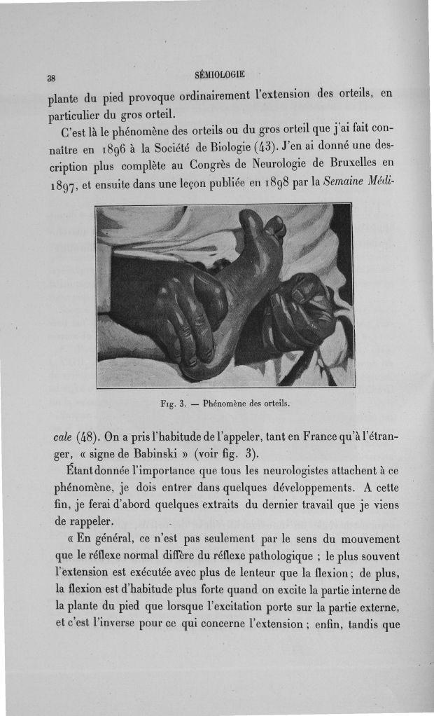 Fig. 3. Phénomène des orteils - Exposé des travaux scientifiques -  - med110133x100x08x0040