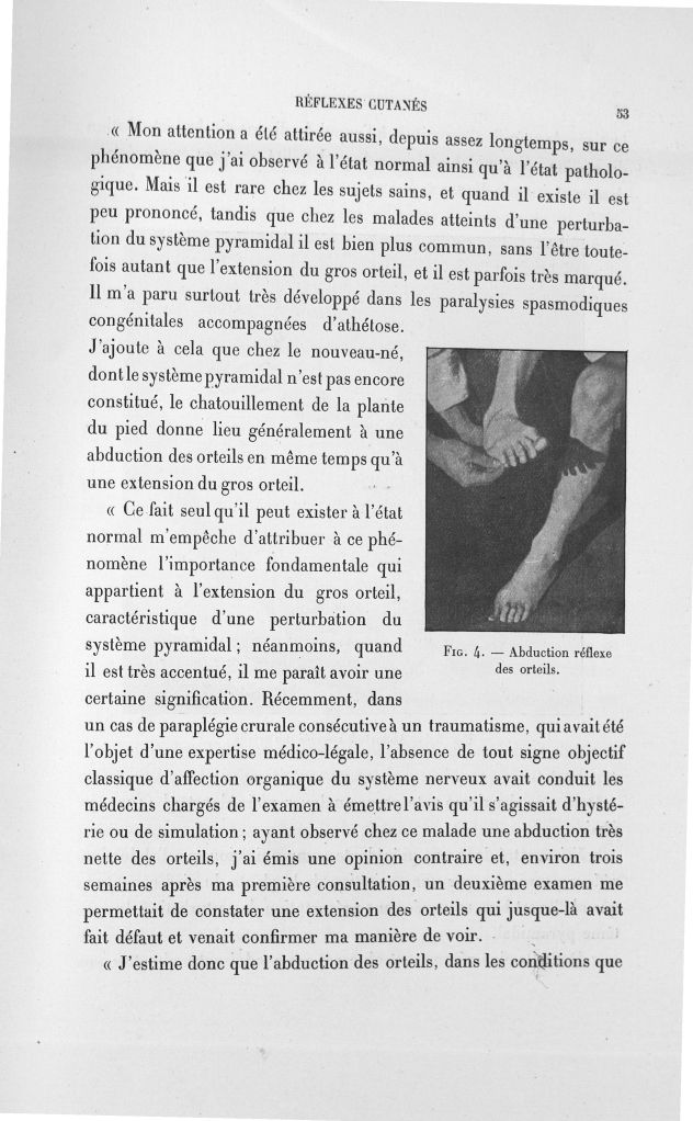 Fig. 4. Abduction reflexe des orteils - Exposé des travaux scientifiques -  - med110133x100x08x0055