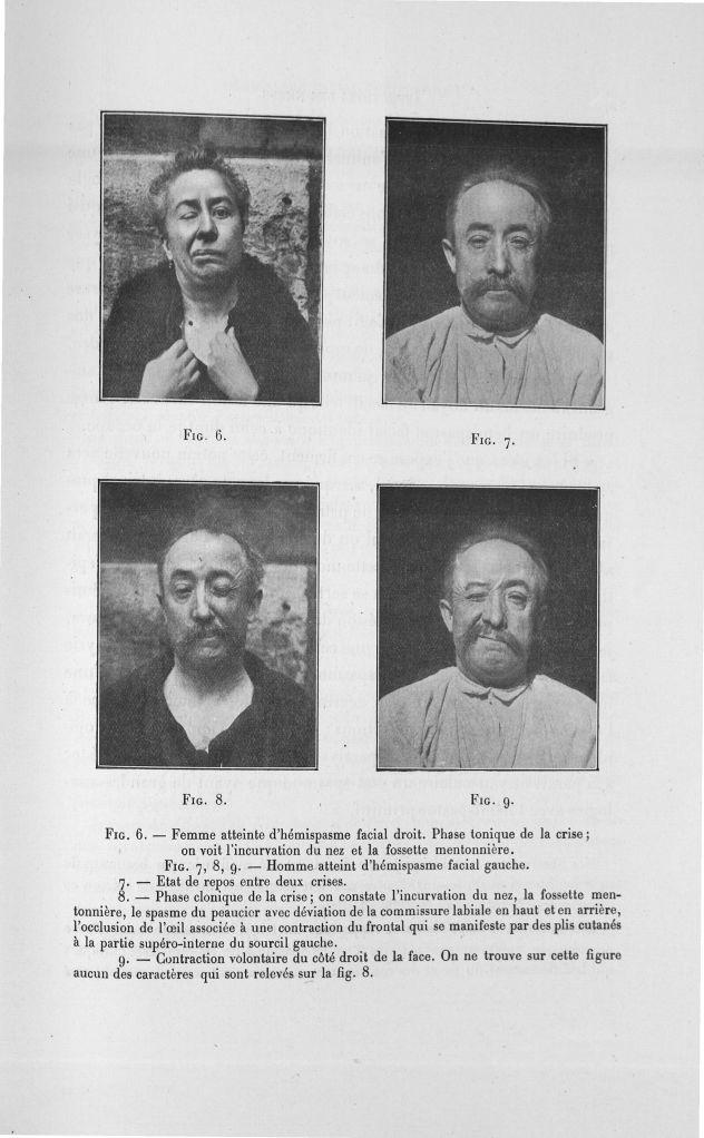 Fig. 6. Femme atteinte d'hémispasme facial droit/ Fig. 7, 8, 9. Homme atteint d'hémispasme facial ga [...] -  - med110133x100x08x0085