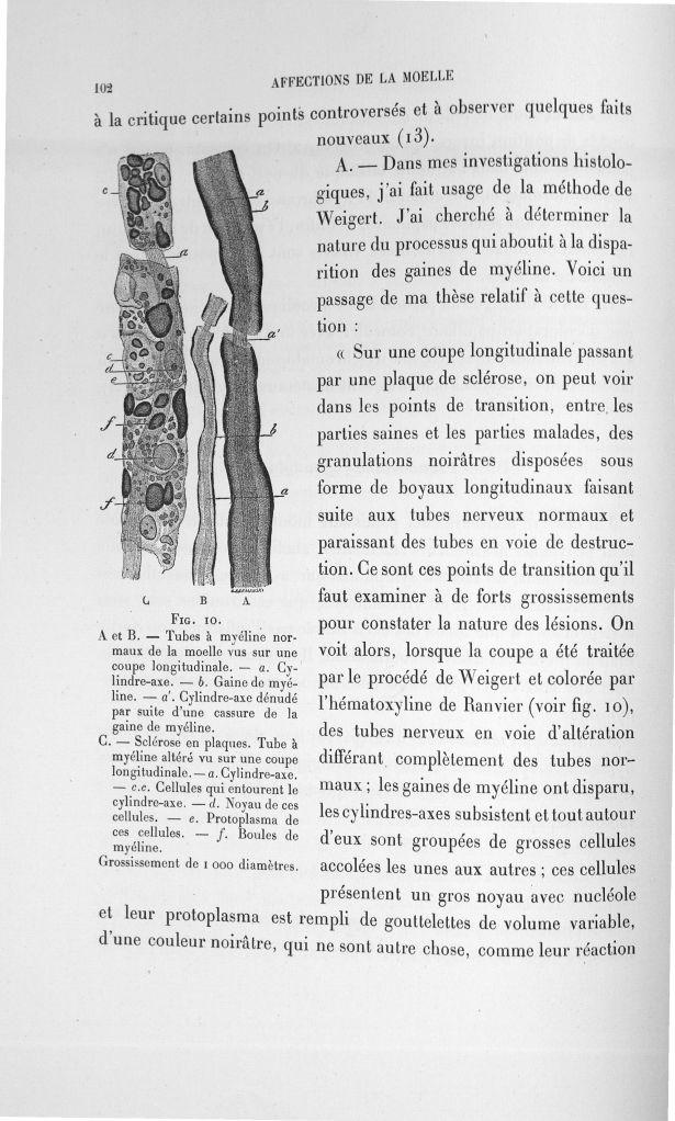 Fig. 10. A et B tubes à myéline normaux de la moelle vus sur une coupe longitudinale... C. Sclérose  [...] -  - med110133x100x08x0104