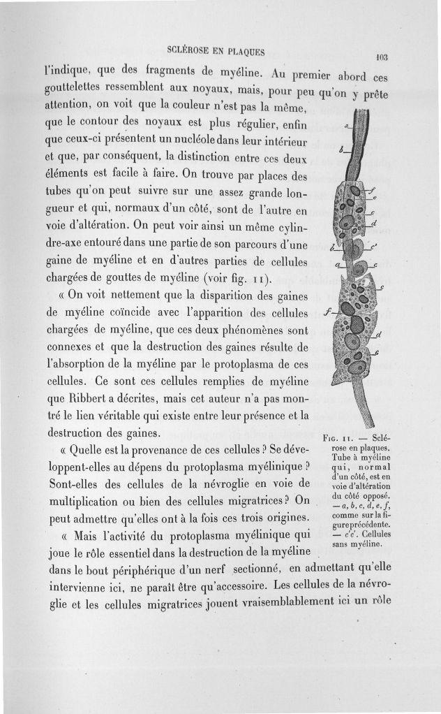 Fig. 11. Sclérose en plaques - Exposé des travaux scientifiques -  - med110133x100x08x0105