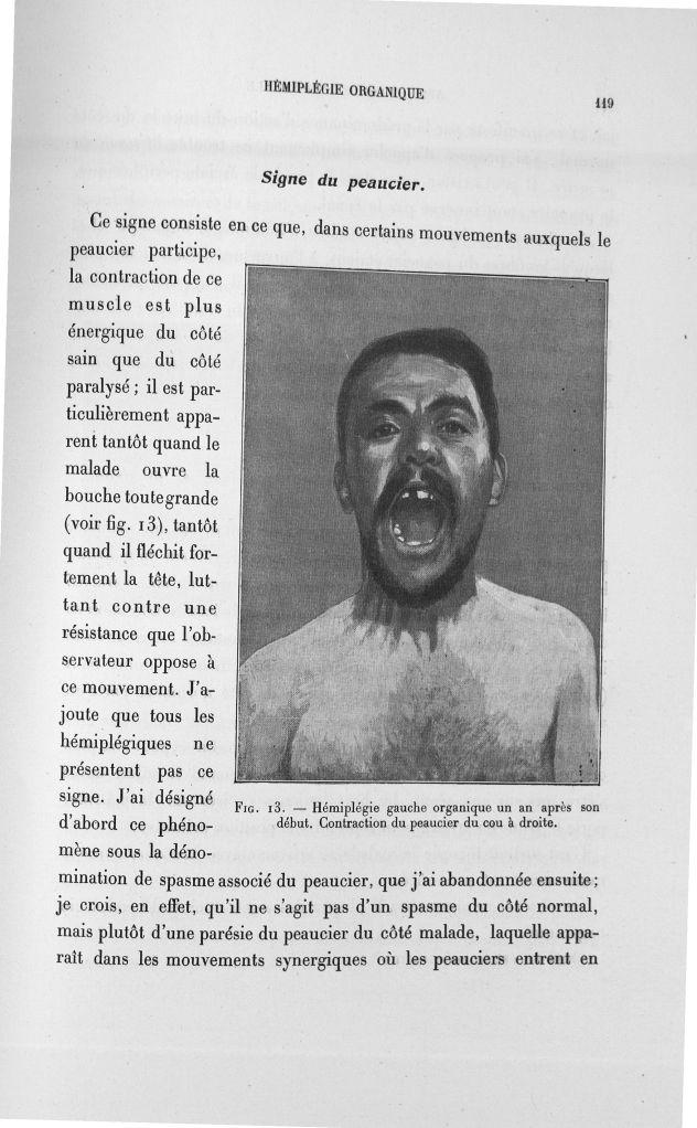 Fig. 13. Hémiplégie gauche organique un an après son début. Contraction du peaucier du cou à droite  [...] -  - med110133x100x08x0121