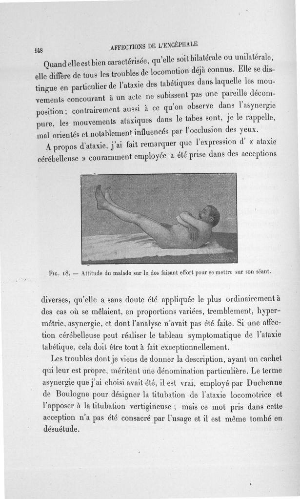 Fig. 18. Attitude du malade sur le dos faisant effort pour se mettre sur son séant - Exposé des trav [...] -  - med110133x100x08x0150