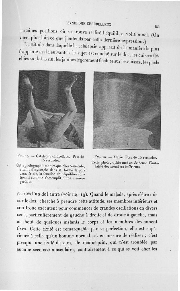 Fig. 19. Catalepsie cérébelleuse. Pose de 15 secondes/ Fig. 20. Ataraxie. Pose de 15 secondes - Expo [...] -  - med110133x100x08x0155