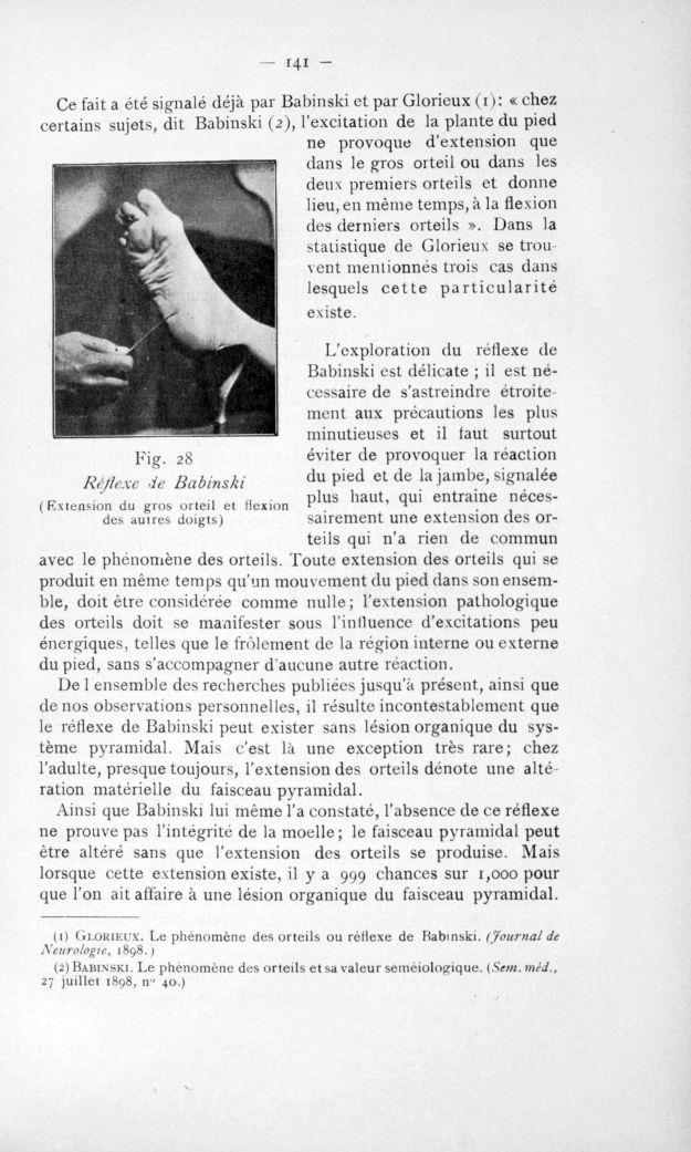 Fig. 28. Réflexe de Babinski (Extension du gros orteil et flexion des autres doigts) - Congrès des m [...] -  - med110817x1901x0150