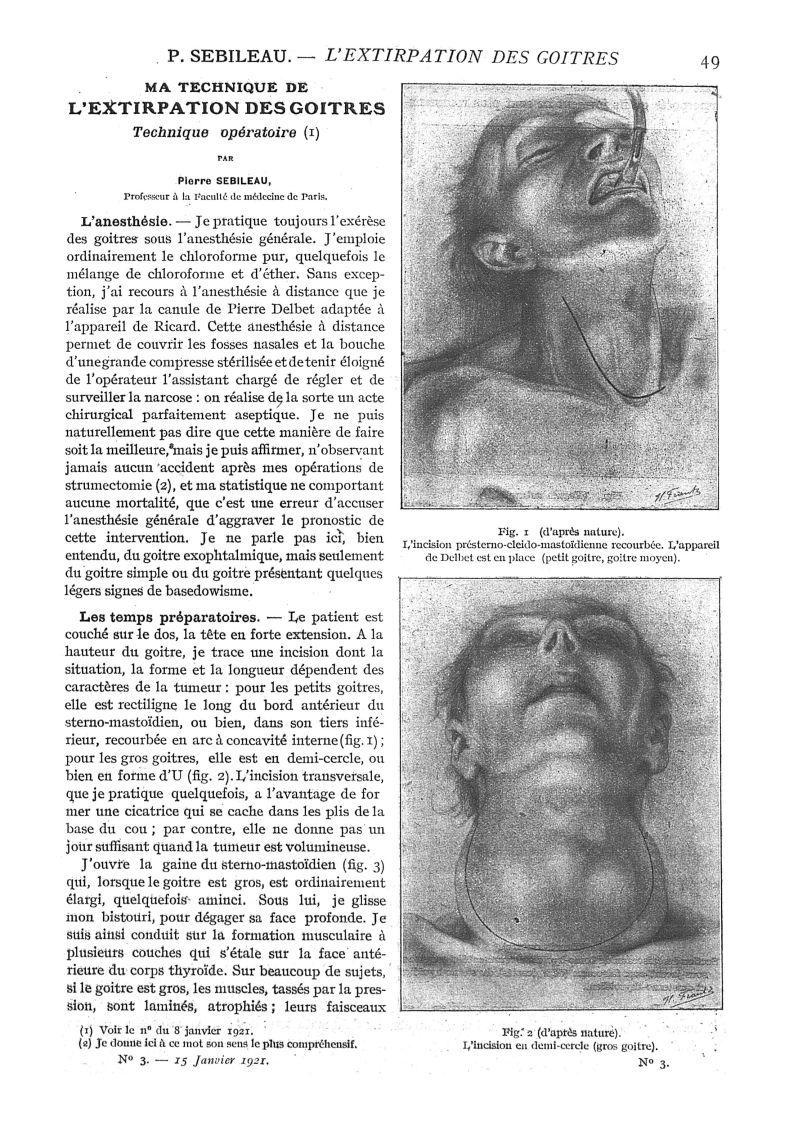 Fig. 1. (d'après nature). - L'incision présterno-cleido ...