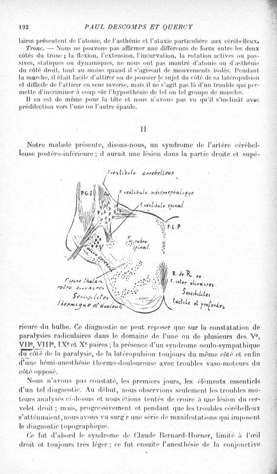 [Syndrome de Babinski-nageotte. Les troubles cérébelleux et vestibulaires. Les troubles sensitifs] - [...] -  - med130135x1919x0204