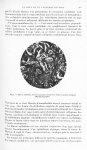 Fig. 4. Fibrose médullaire. Travées cancéreuses fusant entre d'épais trousseaux collagènes (Micropho [...]