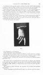 Fig. 1. [Aspect de main hypothalamique au cours d'une maladie de parkinson d'origine encéphalitique] [...]