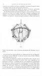 Fig. 2. [Hydrocéphalie chronique chez un adulte par oblitération des trous de Luscka et Magendie. Op [...]