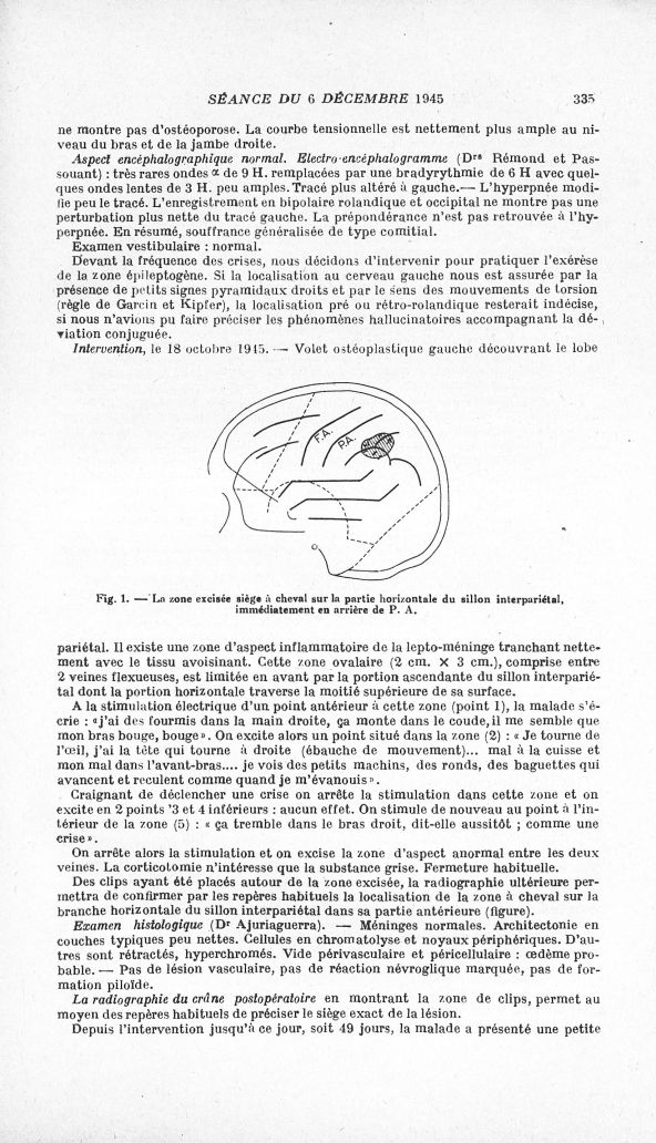 syndrome de laurence moon pdf