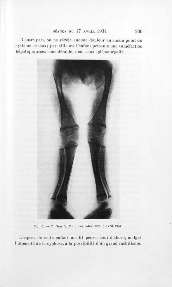 Fig. 6. — P. Ginette. Membres inférieurs. 5 avril 1934 [Ostéomalacie ...