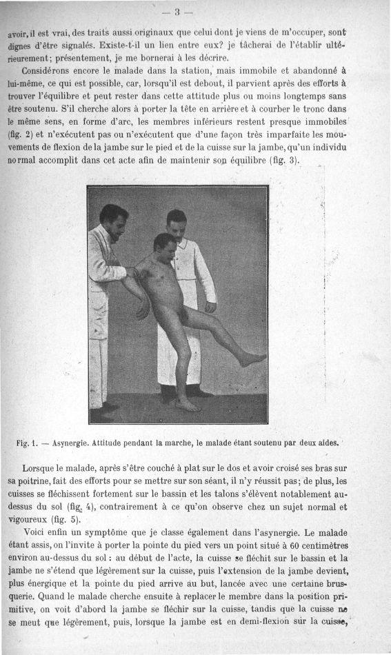 Fig. 1. Asynergie. Attitude pendant la marche, le malade étant soutenu par deux aides - Quelques doc [...] -  - med156766x018x0005