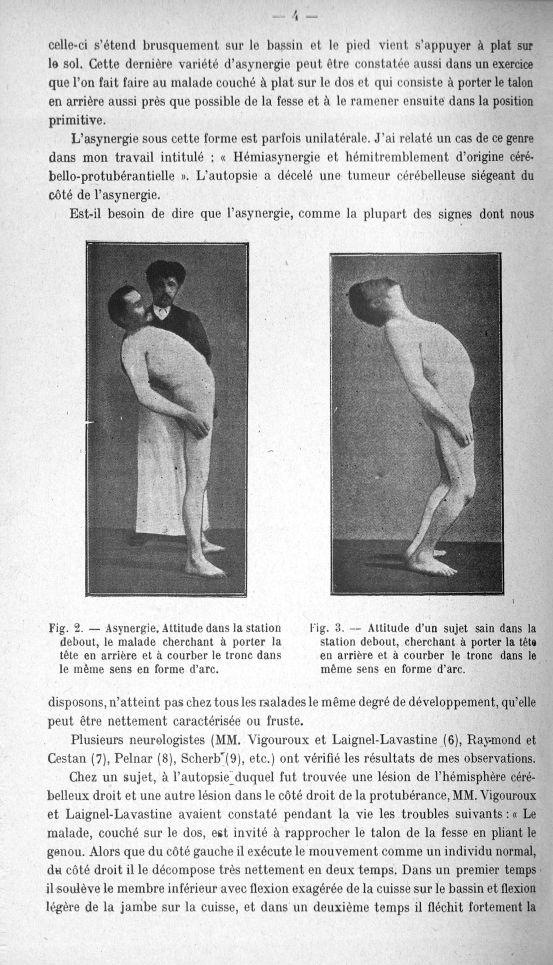 Fig. 2. Asynergie, attitude dans la station debout, le malade cherchant à porter la tête en arrière  [...] -  - med156766x018x0006