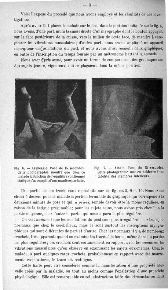 Fig. 6. Asynergie. Pose de 15 secondes. Cette photographie montre que chez ce malade la fonction de  [...] -  - med156766x018x0010