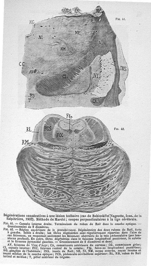 Dégénérations consécutives à une lésion bulbaire (cas de Babinski et Nageotte). Méthode de Marchi; c [...] -  - med22177x03x0127