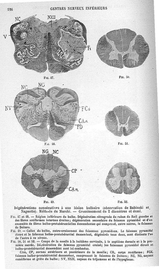 Dégénérations consécutives à une lésion bulbaire (observation de Babinski et Nageotte). Méthode de M [...] -  - med22177x03x0130