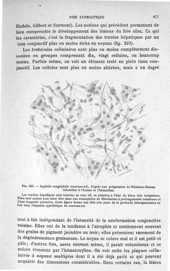 Fig. 240. Syphilis congénitale (nouveau-né), d'après une préparation ...