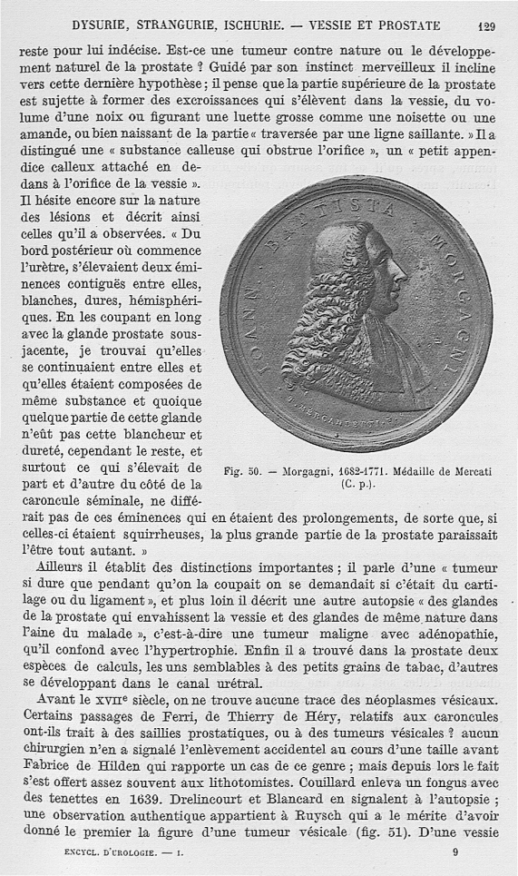 Fig. 50. Morgagni, 1682-1771 -  Encyclopédie française d'urologie, publiée sous la direction de MM.  [...] - Médecins. 18e siècle (Italie) - med25657x01x0164