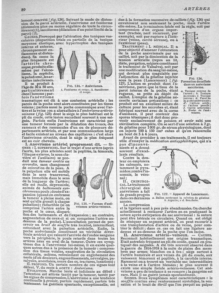Fig. 124. Anévrismes / Fig. 125. Formes d'anévrismes artério-veineux / Fig. 126. Formation de caillo [...] - Anévrismes - med269035x0107