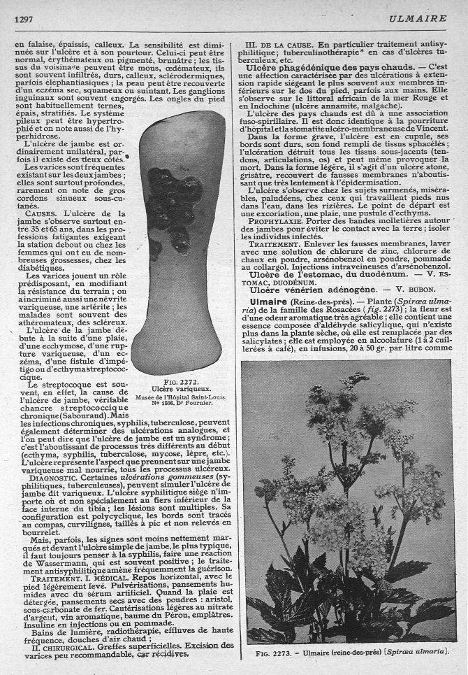 Fig. 2272. Ulcère variqueux. Musée de l'Hôpital Saint-Louis N° 1506. Dr Fournier / Fig. 2273. Ulmaire (reine-des-prés) -  - med269035x1372