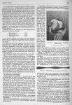 Fig. 446. Canitie à la suite d'explosion d'une mine (Collection du Dr Debat.) / Fig. 447. Monilithri [...]