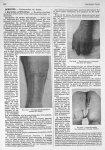 Fig. 657. Dermite médicamenteuse externe (Dr Debat) / Fig. 658. Dermite due au vernissage des obus ( [...]