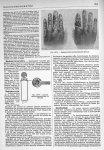 Fig. 1874. Lunette radiochronométrique de Benoist / Fig. 1875. Radiodermites professionnelles (Brocq [...]