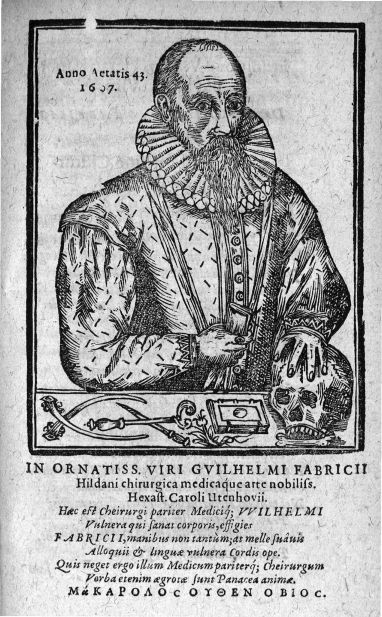 [Guilhelmus Fabricius Hildani] - De Combustionibus quae oleo et aqua fervida, ferro candente, pulver [...] - Médecins. Crânes (têtes). 17e siècle (Suisse, Allemagne) - med32649x02x0013