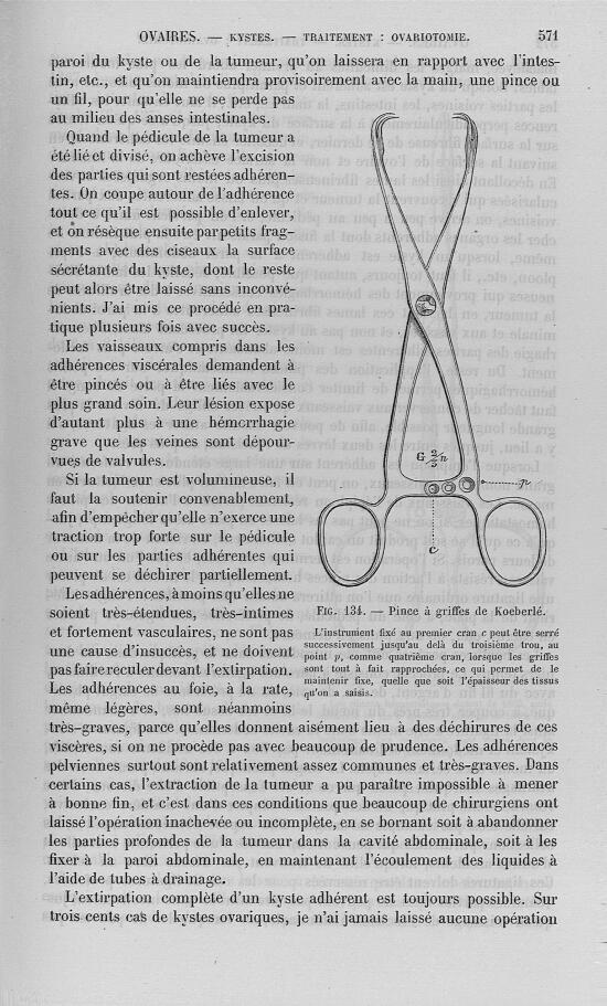 Fig. 134 : Pince à griffes de Koeberlé - Nouveau dictionnaire de médecine de chirurgie pratiques, il [...] -  - med32923x25x0574