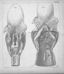 Planche VIII - Traité pratique de la phthisie laryngée, de la laryngite chronique et des maladies de [...]