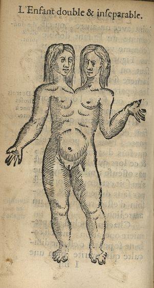 L'enfant double & inseparable - L'accoucheur methodique, qui enseigne la maniere d'operer dans tous  [...] - Obstétrique. Monstres et monstruosités. France. 17e siècle - med34760x0232